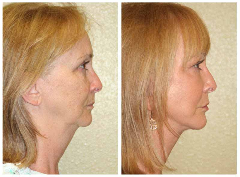 A Before and After photo of a SmartLift Mini Facelift by Dr. Alberico Sessa in Sarasota and Tampa