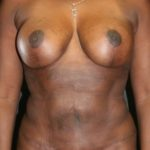 An After Photo of a Mini Tummy Tuck by Dr. Alberico Sessa in Sarasota
