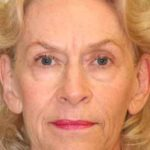 A Before Photo of a Blepharoplasty Plastic Surgery by Dr. Alberico Sessa in Sarasota