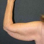 A Before Photo of an Arm Lift Plastic Surgery by Dr. Alberico Sessa in Sarasota