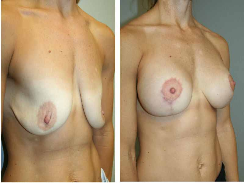 A Before and After Photo of a Breast Augmentation With Lift Plastic Surgery by Dr. Alberico Sessa in Sarasota, FL