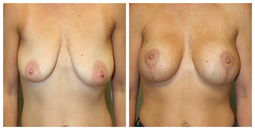 A Before and After photo of a Breast Augmentation with Lift Plastic Surgery by Dr. Alberico Sessa in Sarasota