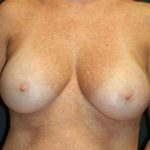 A Before Photo of a Breast Lift Plastic Surgery by Dr. Alberico Sessa In Sarasota