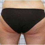 A Before Photo of Cellulite Reduction by Dr. Alberico Sessa in Sarasota