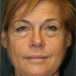 A Before Photo of a Facelift by Dr. Alberico Sessa in Sarasota