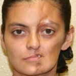A Before Photo of Facial Implant Plastic Surgery by Dr. Alberico Sessa
