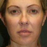 A Before Photo of Filler Injections In Sarasota