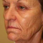A Before Photo of CO2 Laser Plastic Surgery by Dr. Alberico Sessa in Sarasota