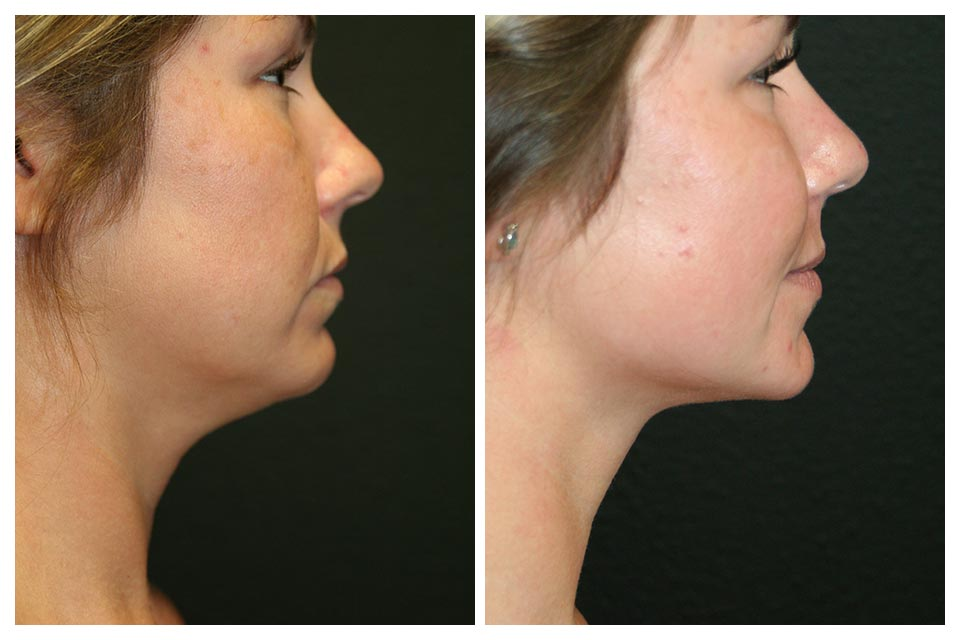 A Before and After Photo of Submental Liposuction by Dr. Alberico Sessa In Sarasota