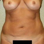 A Before Photo of Liposuction Plastic Surgery by Dr. Alberico Sessa in Sarasota