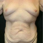 A Before Photo of Gynecomastia Plastic Surgery by Dr. Alberico Sessa in Sarasota