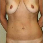 A Before Photo of a Mini Tummy Tuck Plastic Surgery by Dr. Alberico Sessa in Sarasota