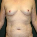 A Before Photo of a Mommy Makeover Plastic Surgery by Dr. Alberico Sessa in Sarasota