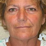 A Before Photo of a Neck Lift Plastic Surgery By Dr. Alberico Sessa In Sarasota