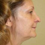 A Before Photo of a Rhinoplasty Plastic Surgery by Dr. Alberico Sessa In Sarasota