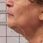 A Before Photo of Ski Tightening By Dr. Alberico Sessa in Sarasota