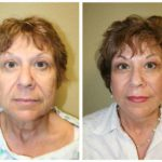 A Before & After of a SmartLift Facelift Plastic Surgery by Dr. Alberico Sessa in Sarasota