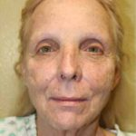 A Before Photo of a SmartLift Facelift by Dr. Alberico Sessa In Sarasota