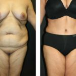 A Tummy Tuck Before & After Photo by Dr. Alberico Sessa in Sarasota