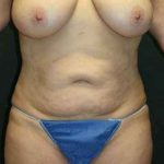 A Before Photo of a Tummy Tuck Plastic Surgery by Dr. Alberico Sessa