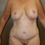 An After photo of a Breast Reduction Plastic Surgery by Dr. Alberico Sessa in Sarasota