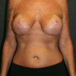 An After Photo of A Breast Augmentaton Plastic Surgery in Sarasota