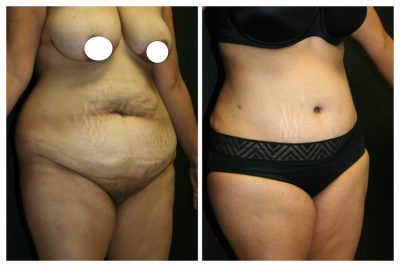 A Before & After Photo Of An Extended Tummy Tuck Plastic Surgery by Dr. Alberico Sessa in Sarasota