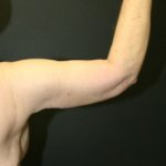 An After Photo of an Arm Lift Plastic Surgery by Dr. Alberico Sessa in Sarasota