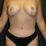An After Photo of a Mommy Makeover Plastic Surgery by Dr. Alberico Sessa in Sarasota