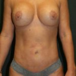 An After Photo of a Mini Tummy Tuck Plastic Surgery by Dr. Alberico Sessa in Sarasota