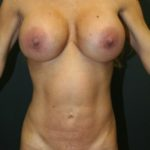 An After Photo of a Tummy Tuck Plastic Surgery by Dr. Alberico Sessa in Sarasota