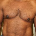 An After Photo of a Gynecomastia Cosmetic Surgery by Dr. Alberico Sessa in Sarasota