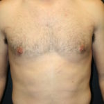 An After Photo of a Male Breast Reduction Cosmetic Surgery by Dr. Alberico Sessa in Sarasota